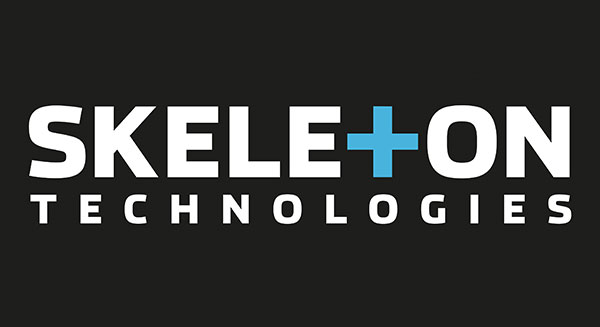 Skeleton Technologies brings in additional capital to close a total of €70 million equity in Round D financing